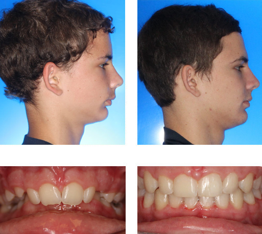 Fixed Functional Treatment Dr A B Hammond Orthodontics